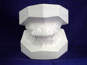 Teeth Mold Used to Prepare Teeth Veneers