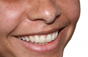 Close Up Smile Could be Teeth Veneers
