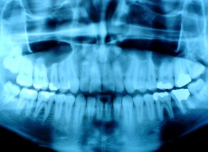 It's Dental Arcade (teeth x-ray)
