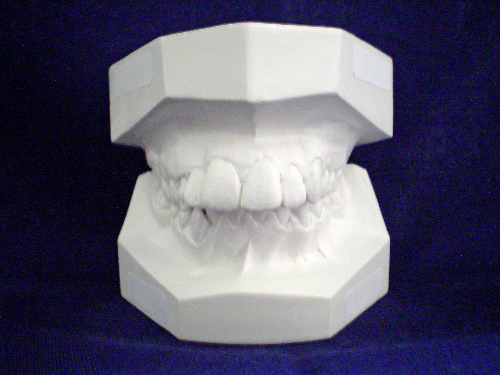 How much are porcelain veneers dazzling white teeth hq choosing a shade for teeth veneers solutioingenieria